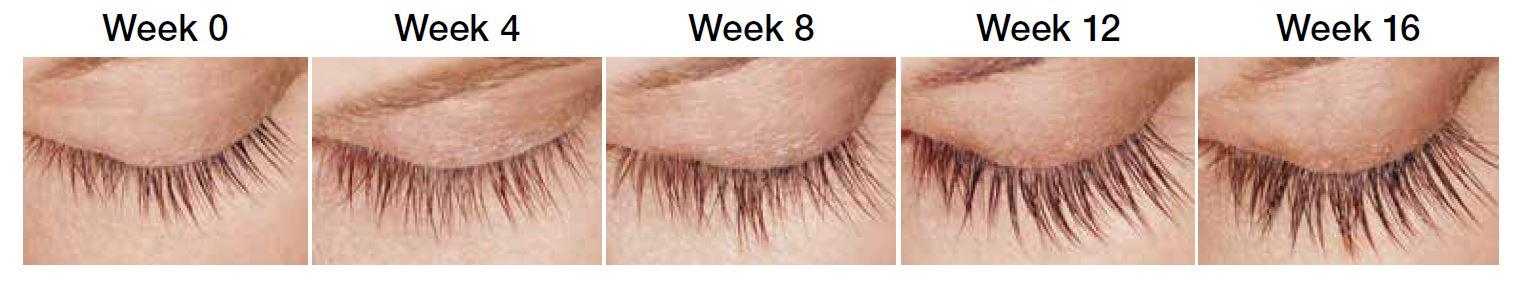Grow Thicker Longer Eyelashes Latisse Eyelash Treatment Castle