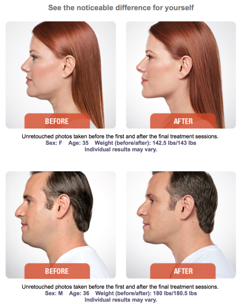 Sculpt & Countour The Jawline With Kybella | Kybella Fat
